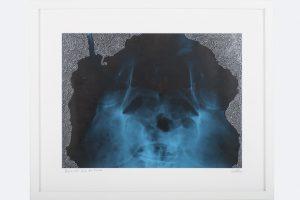 """Reinhard Köhler, """"Die andre Seite der Macht"""" Silberlackstift auf Röntgenaufnahme 42 x 52 cm, gerahmt"""