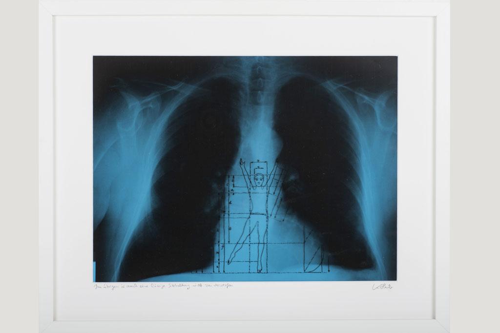 """""""Im Übrigen ist auch eine lässige Sitzhaltung nicht zu verwerfen"""", Reinhard Köhler, Röntgenaufnahme, Folienstiftzeichnung, 42x52 cm"""